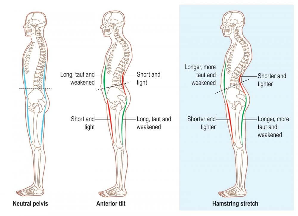 Why stretching your hamstrings won't help your back pain. In fact it's  making it worse - PT